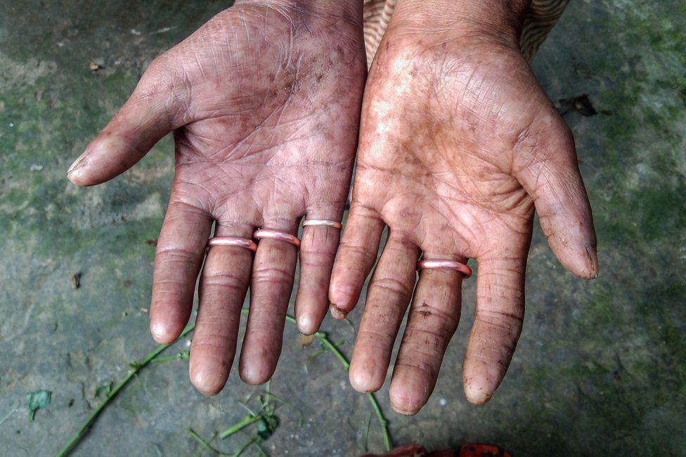 Μπαγκλαντές : Η οικογένεια χωρίς δακτυλικά αποτυπώματα – Η περίπτωση της Αδερματογλυφίας