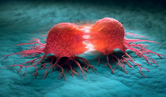 Nέος μηχανισμός καρκινογένεσης ανακαλύφθηκε από Έλληνες ερευνητές