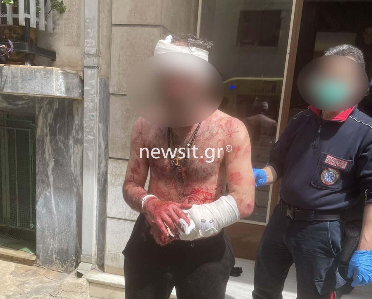 Πατήσια! Μαχαίρωσε τον αδερφό του, αυτοτραυματίστηκε και επιτέθηκε σε αστυνομικό