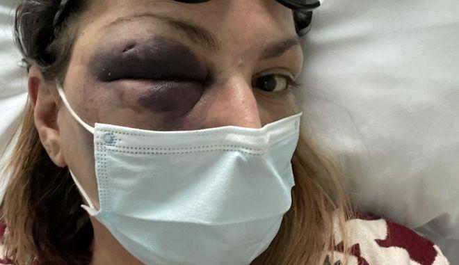 """Στεφανία Τζαφέρη: Περιπλέκεται η υπόθεση της γνωστής blogger - """"Έπεσα, αυτή είναι η επίσημη εκδοχή"""""""